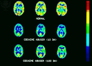 MRI / CAT SCANS: NORMAL AND COCAINE ABUSER